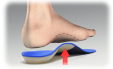 footOverOrthotic_withLine