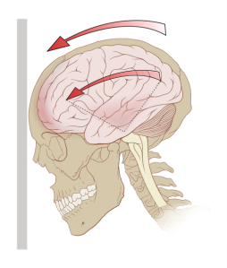 By Patrick J. Lynch, medical illustrator [CC BY 2.5 (https://creativecommons.org/licenses/by/2.5), GFDL (http://www.gnu.org/copyleft/fdl.html) or CC-BY-SA-3.0 (http://creativecommons.org/licenses/by-sa/3.0/)], via Wikimedia Commons